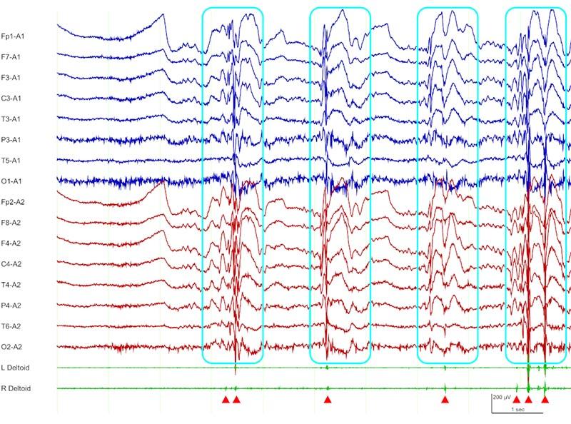 脳波の波形